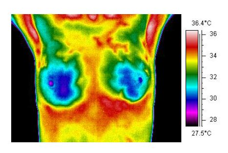 Thermography image of breasts